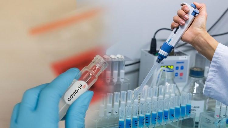 An samu karin mutum 573 wadanda suka harbu da cutar coronavirus/covid-19 a Najeriya